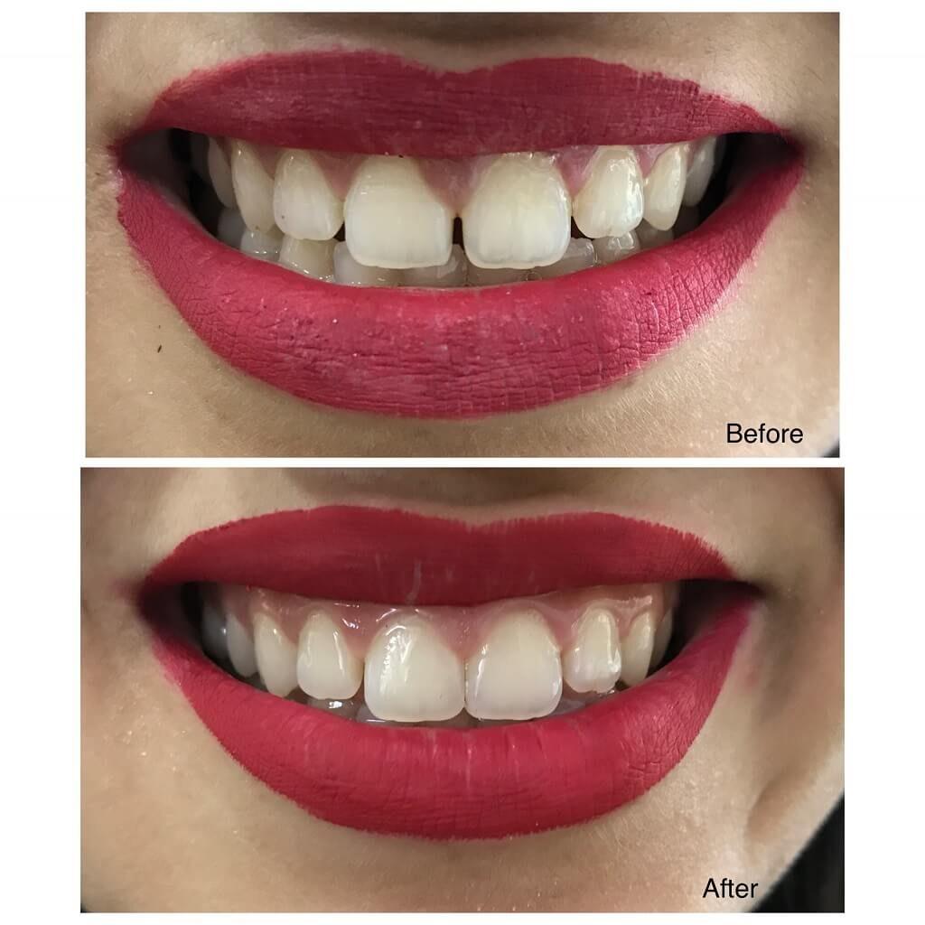 Cosmetic Filings by Aesthetic Dentist Dr. Sandhya Biyani