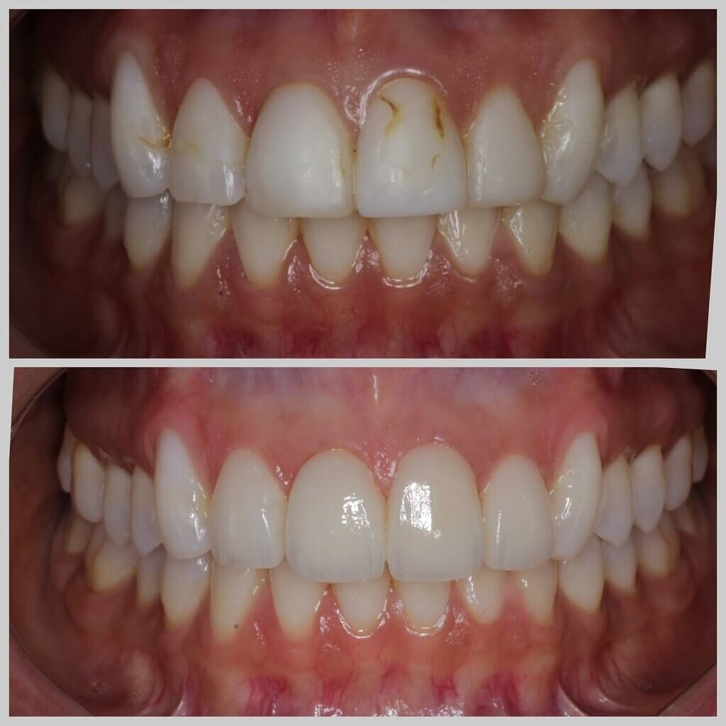 Cosmetic smiles designing by dentist using EMax Veneers at Divine Smiles Dental Clinic