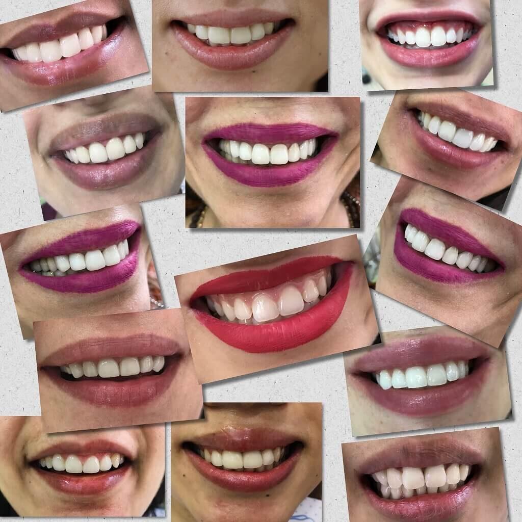 Divine Smiles by Dr. Sandhya Biyani Dental Treatment