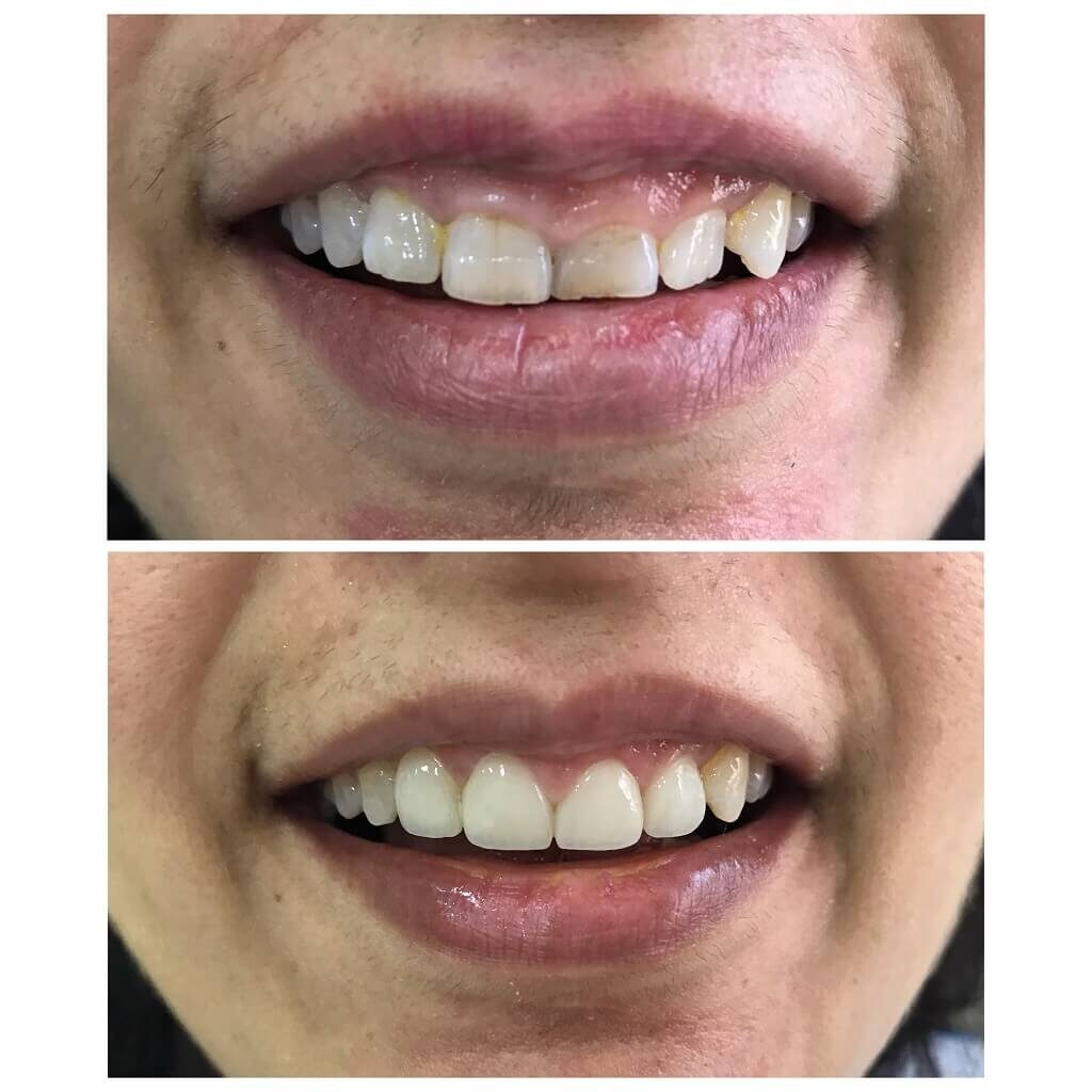 Gum Surgery by Dentist at Bandra West Dental Clinic