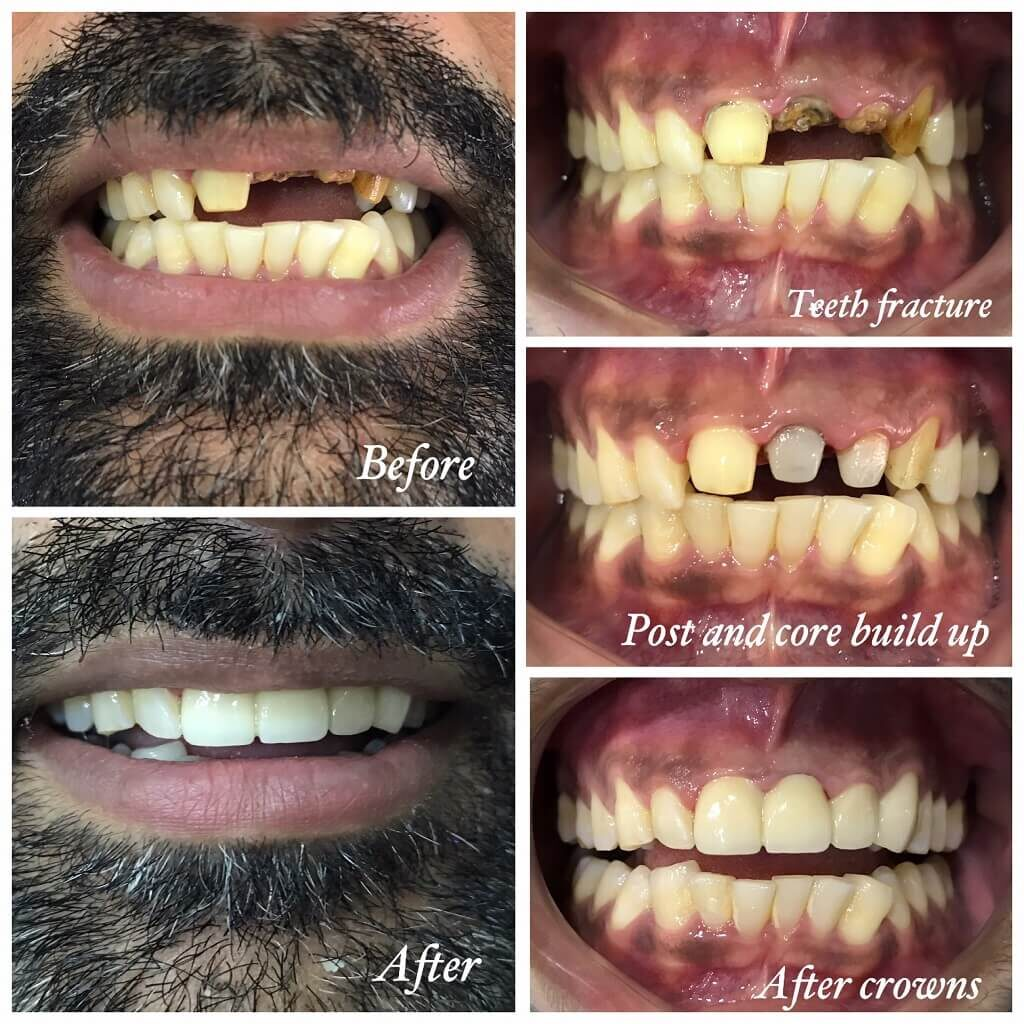 Post and Core dental crown