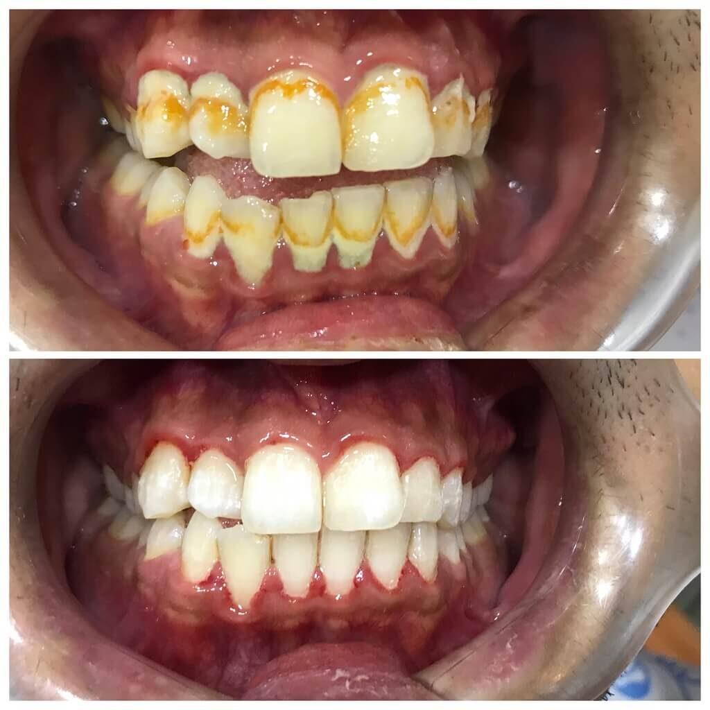Scaling and regular dental checkup polishing