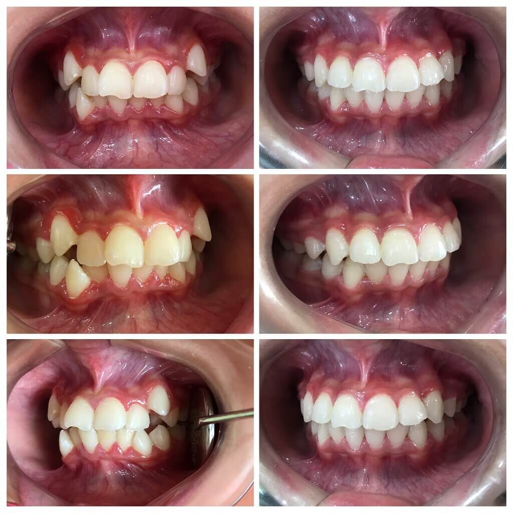 teeth straightening using braces and ortho treatment by orthodontist in bandra