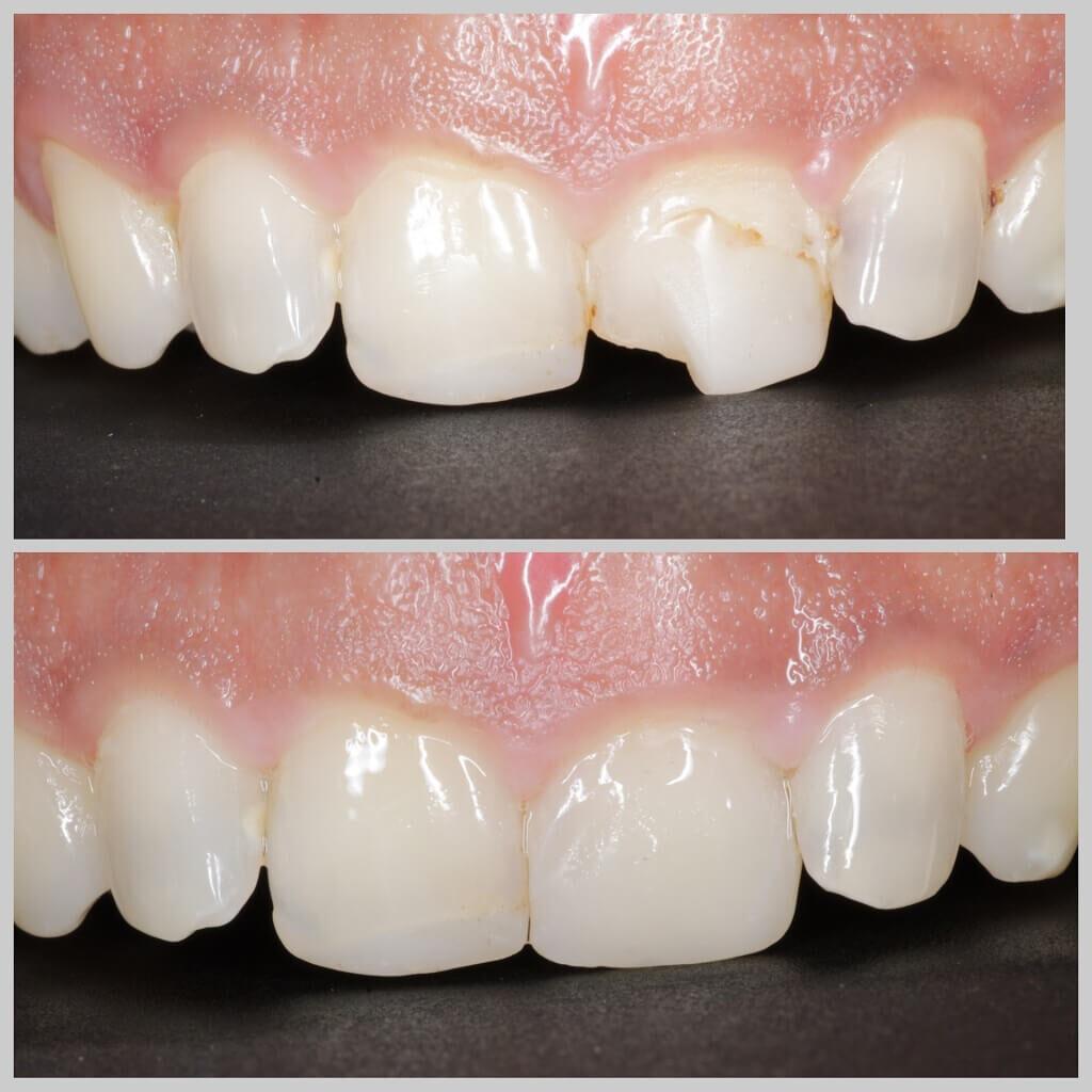 tooth chip off dental trestoration of chipped off broken teeth
