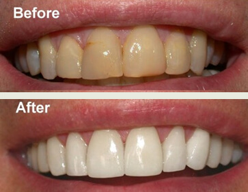zoom_before_after-teeth-whitening